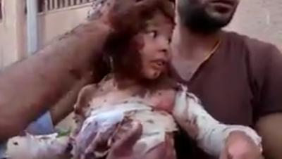 Bayi Suriah yang Terbakar oleh Bom Napalm, Diobati dengan Lumpur