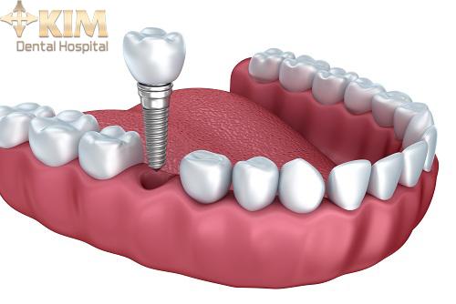 Phẫu thuật trồng răng implant có đau không?