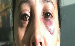 Mulher é chicoteada e espancada pelo companheiro no RN por causa de um porco