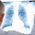 Pengertian Penyakit Asbestosis, Gejala dan Penyebab