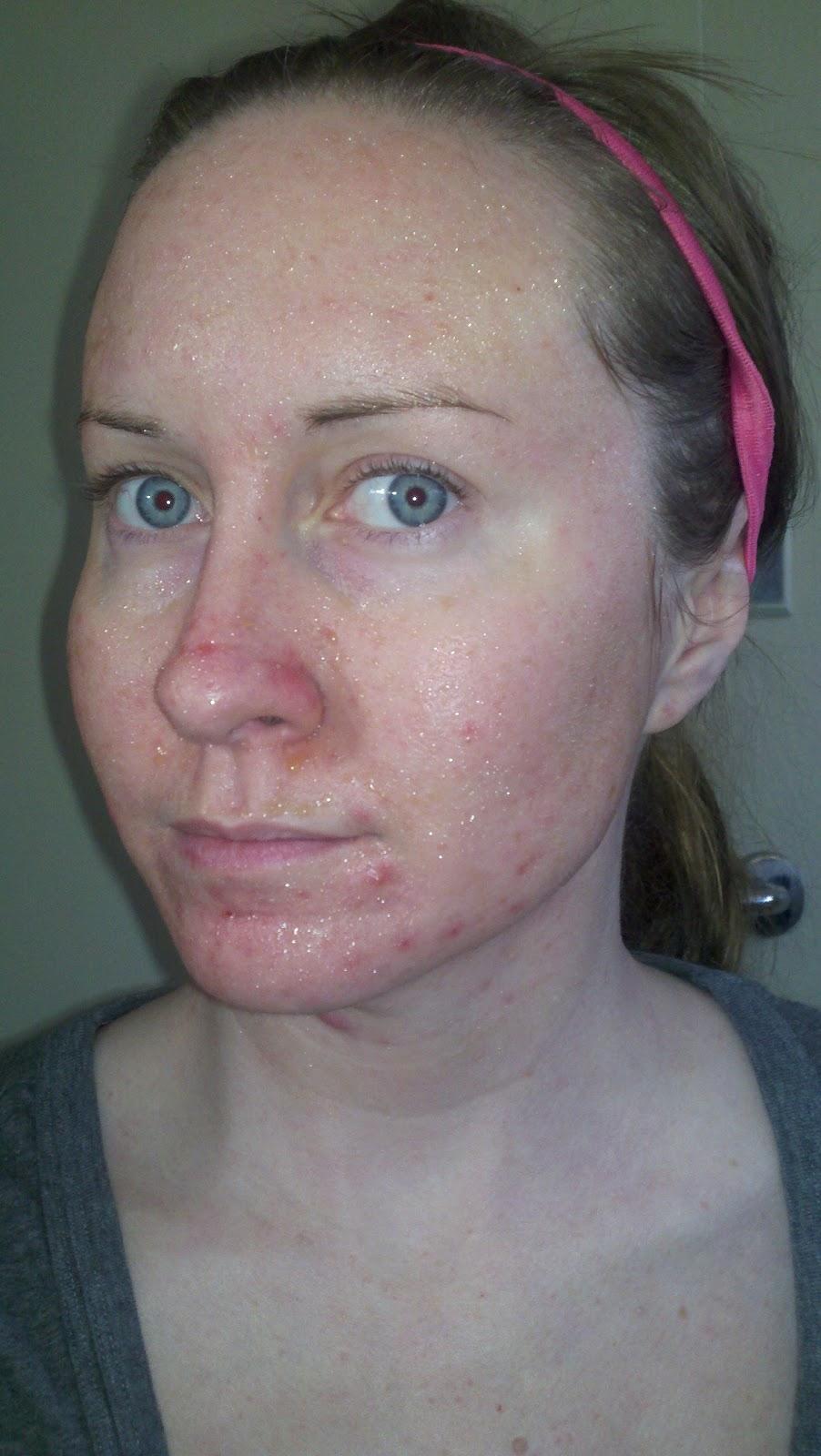 acne sex