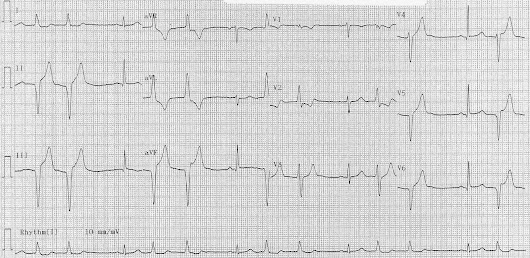 ECG of the Week - 13th October 2014 - Interpretation