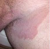 Obat gatal ampuh Mengatasi gatal di Sekitar selangkangan