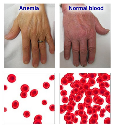 wellness lab health info what is anemia