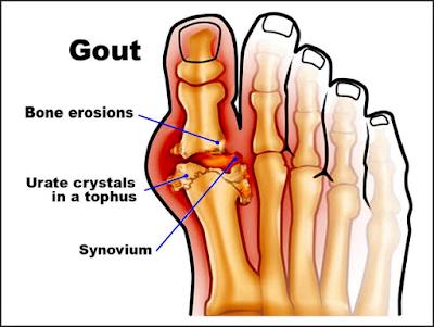 http://www.pusatmedik.org/2016/07/definisi-penyebab-dan-pengobatan-serta-penanganan-penyakit-gout-menurut-ilmu-kedokteran.html