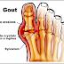 Definisi Penyebab Dan Pengobatan Serta Penanganan Penyakit Gout Menurut Ilmu Kedokteran