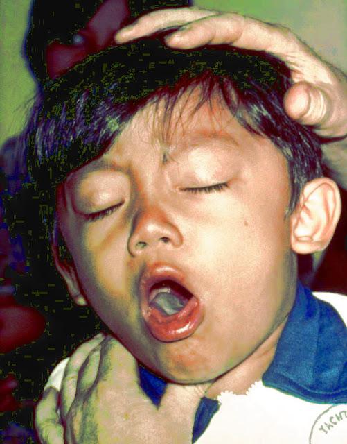 a patient with cough