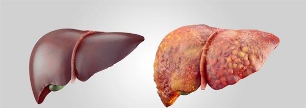 10 Aliments et suppléments qui inversent la maladie du foie