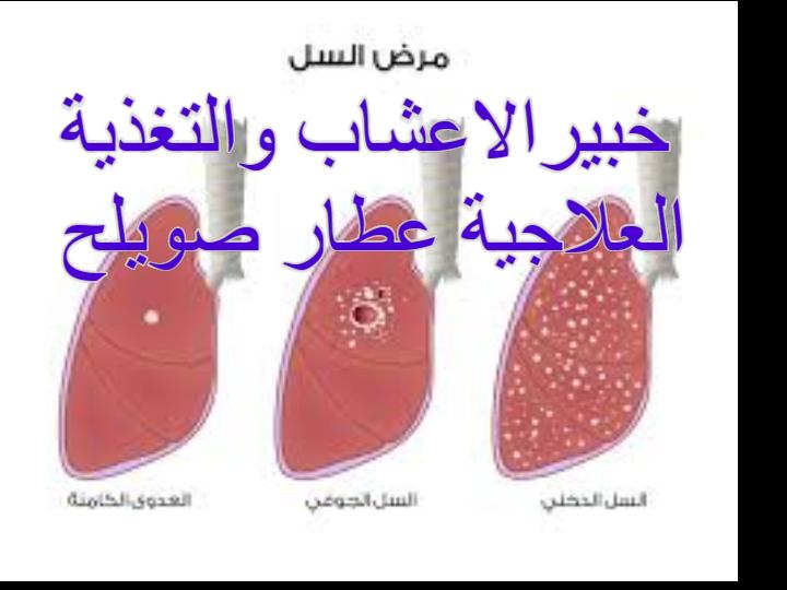 bd6ec48e422a3 أمراض الجهاز التنفسي وسبل الوقاية منها وعلاجها ~ الجهاز التنفسي-خبير ...