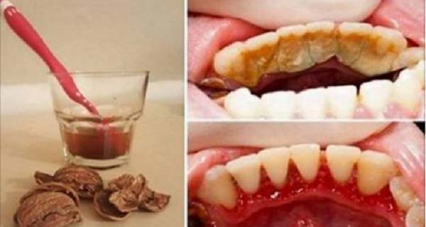 Goodbye To Bad Breath, Plaque, And Tartar And Destroy Bad Bacteria In Your Mouth With This Ingredient!
