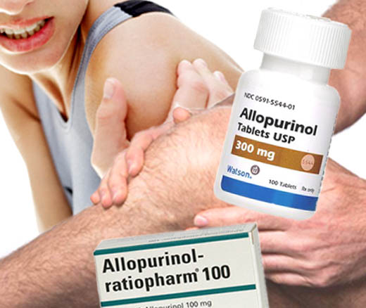 Allopurinol untuk Menurunkan Kadar Asam Urat