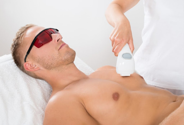 The laser hair removal for men