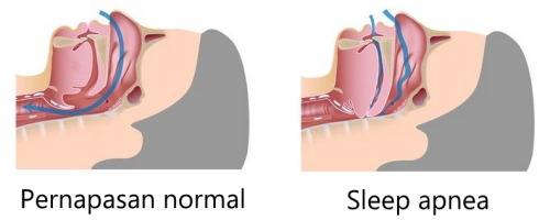 Pengobatan Sleep Apnea