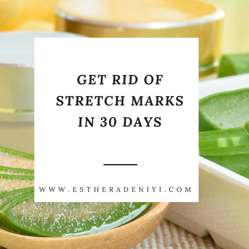 Get rid of stretch marks in 30 days