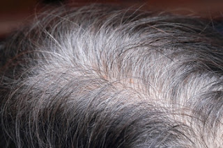 home remedies,gray hair,natural remedies,home remedies for grey hair,home remedies for white hair,remedies for grey hair,home remedies to stop premature hair graying,home remedy for grey hair,home remedy for gray hair,treatment for grey hair,home remedies for gray hair,natural,natural hair treatment for gray hair,white hair to black hair naturally for men