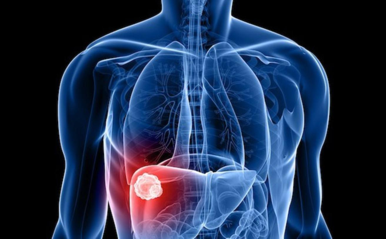 Signs Of Liver Cancer - healtinews