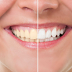 Beberapa Rahasia Tentang Pemutihan Gigi