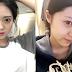 Dia Kok Lebih Cantik Karena Operasi Plastik Hidung Korea? Mau Juga..
