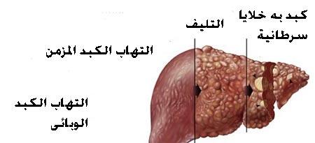 الاعراض الاوليه لكبد الوبائى