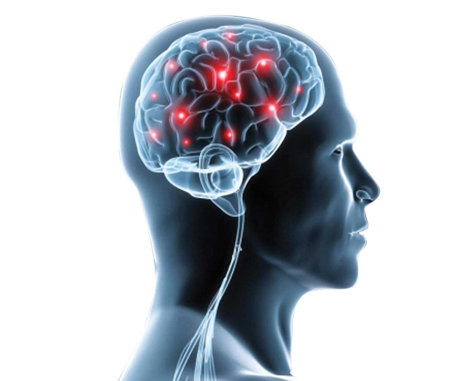 the two neurological disorders that i We suggest three major categories for neurological disorders (group 1 = no diagnostic uncertainties group 2 = minor diagnostic uncertainties group 3 = major.