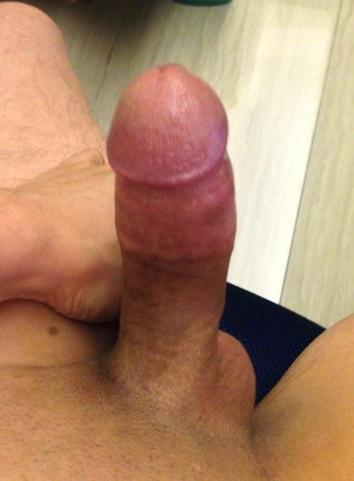 Chinese Mans Circumcision-7291