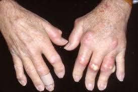 Penyakit Rematik dan Asam Urat