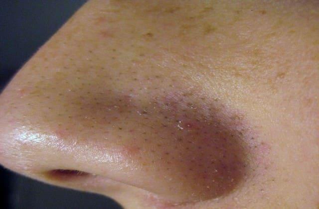 6 Cara Alami Menghilangkan Komedo Membandel Berikut ini Murah Banget Lho..Nggak Perlu ke Dokter Kecantikan
