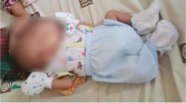 Malang Nasib Bayi Berkepala Dua ini, Bukan Mendapat Perawatan Malah Tergeletak Dikontrakan