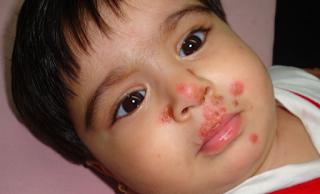 Obat luka kulit melepuh pada anak