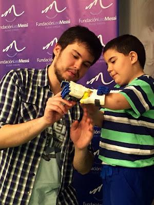 Solidario inventor de prótesis
