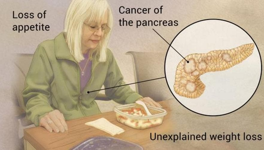 Stage 4 Pancreatic Cancer Life Expectancy