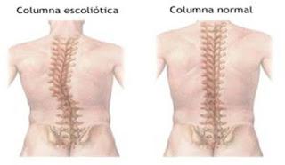 Cualquier nervio en la región de la columna puede ser dañado o aplastado, y esto puede causar mucho dolor crónico.