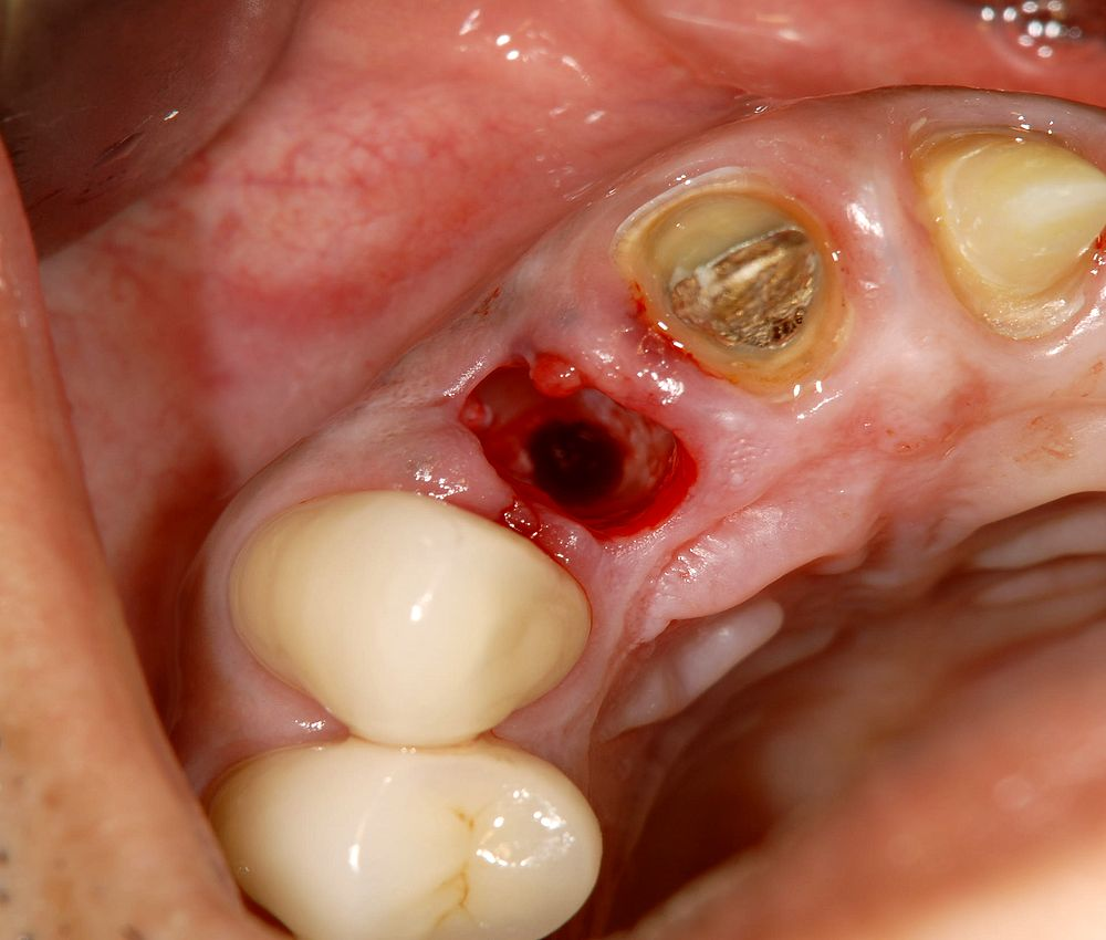 oral-surgery-infection