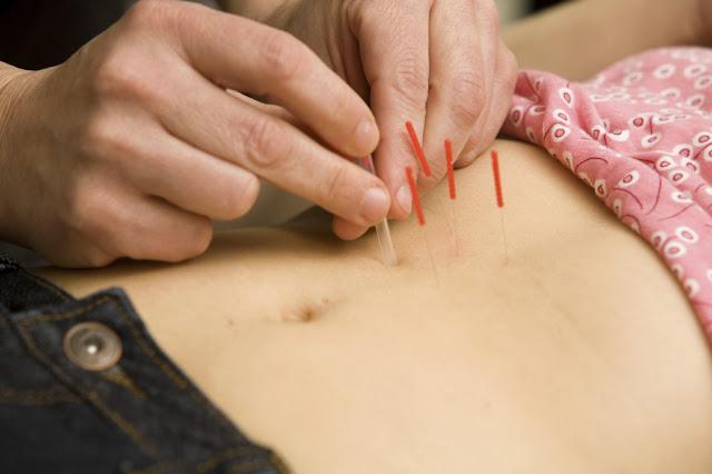 Akupunktur untuk Endometriosis