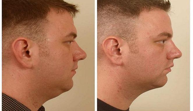 5 Cara Menghilangkan Double Chin atau Lemak di Bawah Dagu