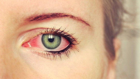 How to Quickly Treat Red Eyes Disease