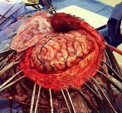 عملية-في-الدماغ