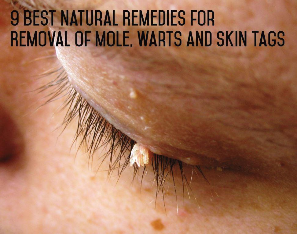Best Natural Mole Removal