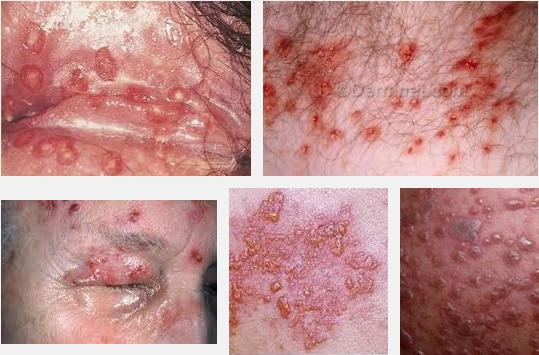 Foto Dan Penjelasan Penyakit Herpes ~ Aku Hanya Ingin Sembuh
