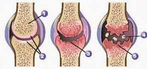 Cara mengobati Nyeri Sendi di Lutut Akibat Pengapuran