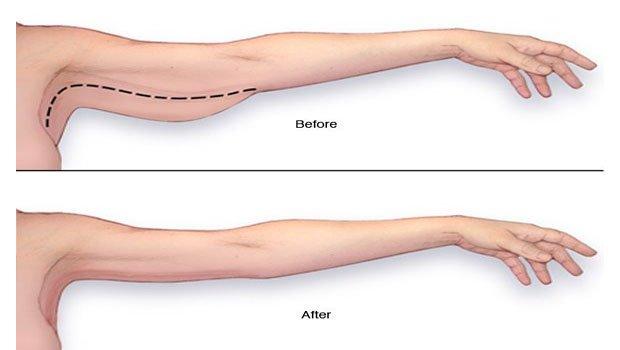 Reducir la grasa del abdomen hombres image 10