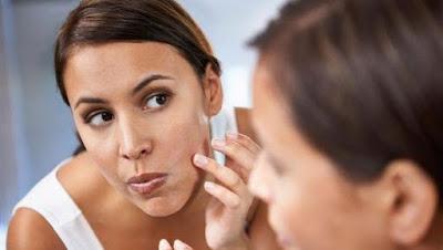 beauty-skincare-eight_home_remedies_to_treat_acne_scars ٨ خلطات طبيعية لعلاج آثار حب الشباب بالمنزل... جربيها