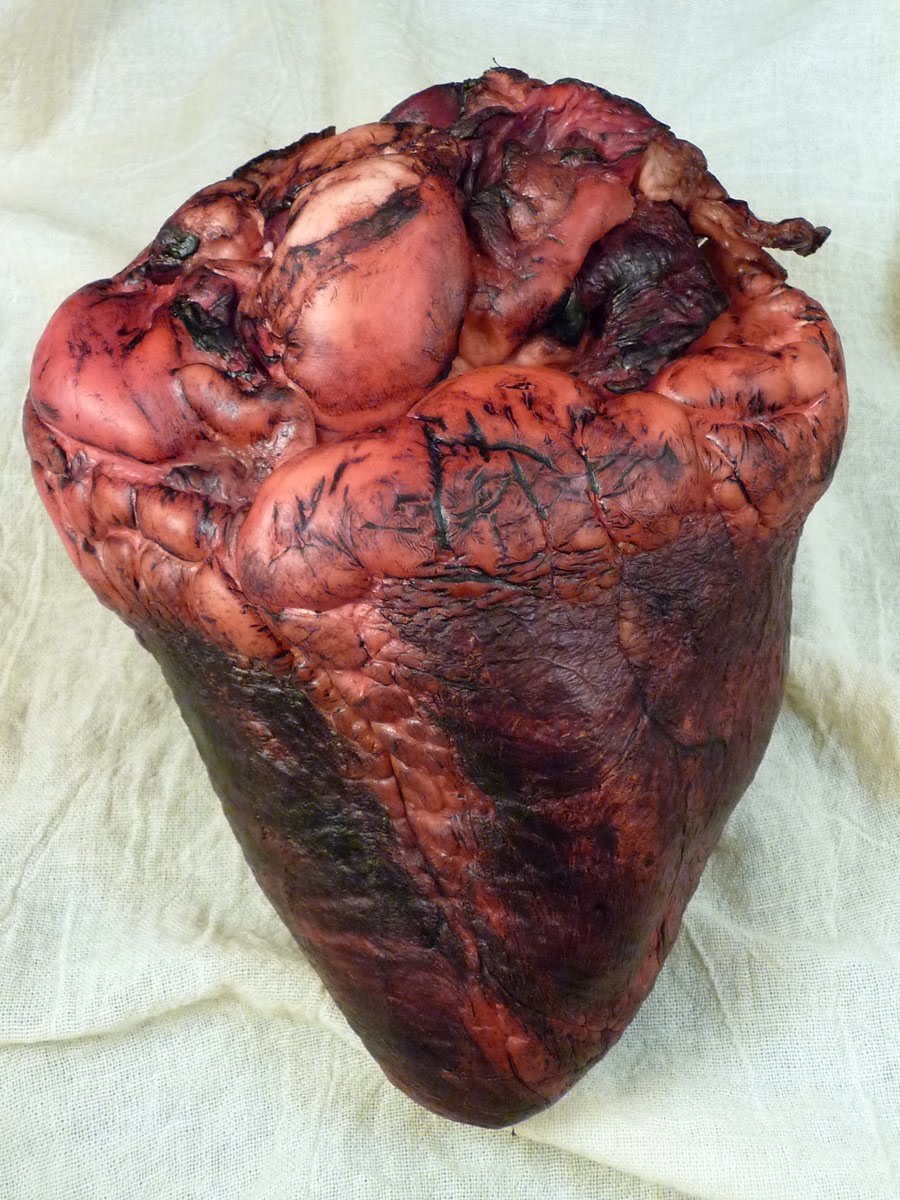The gallery for --> Actual Human Heart Drawing