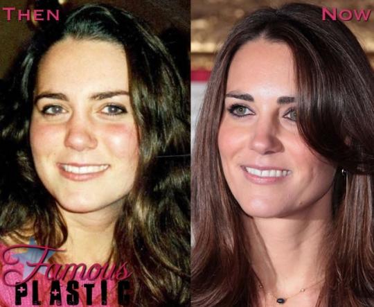 Kate Middleton Plastic Surgery