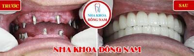 trồng răng implant ở đâu mùa world cup -8