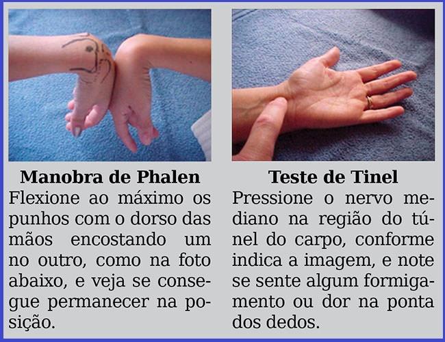 """O teste de Phalen e o teste de Tinel. - """"Síndrome do Túnel do Carpo"""""""