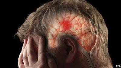 Obat Yang Ampuh Untuk Mengatasi Penyakit Stroke Sampai Sembuh
