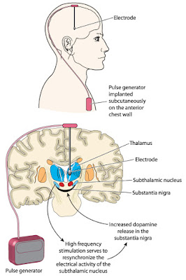deep brain stimulation