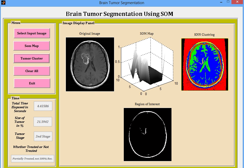 Brain Tumor Detection Using Segmentation and Clustering