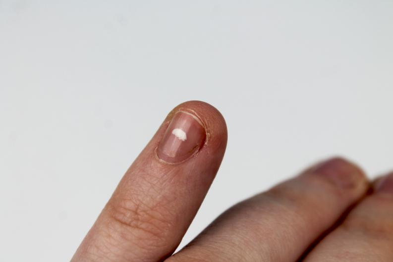 a que se deben las manchas blancas en las unas de las manos